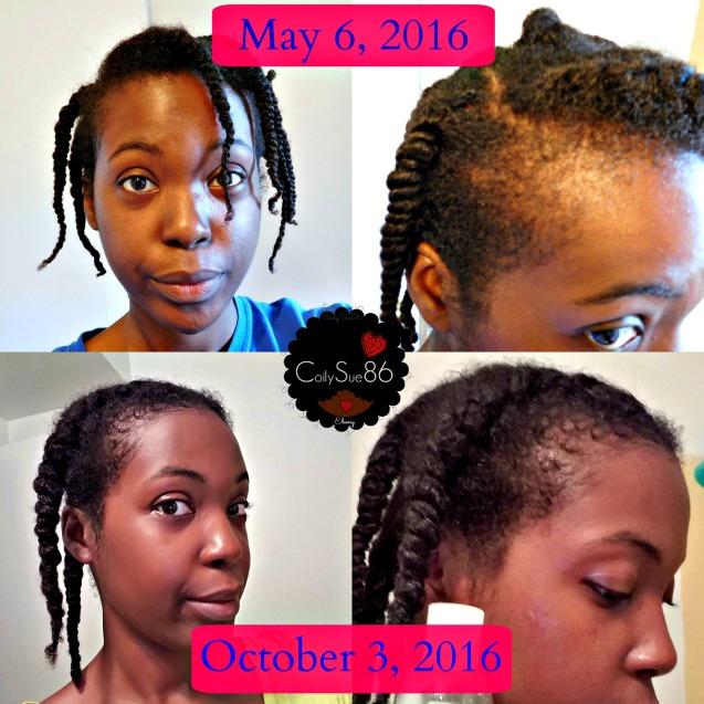 hair-growth-progress-project-pic-1-w-logo